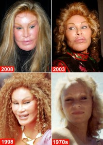 jocelyn wildenstein before  after surgery